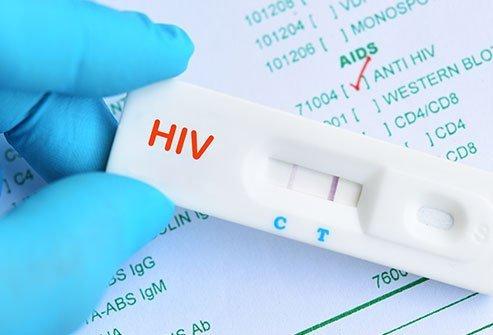 rapid hiv test